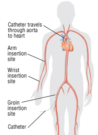 VHFC0021_What_is_cardiac_catheterization_image1.png